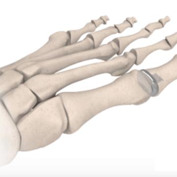 hemi-implant