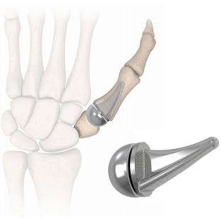 thumb-implant